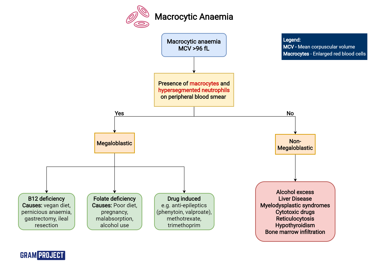 Interpreting Macrocytic Anaemia flowchart