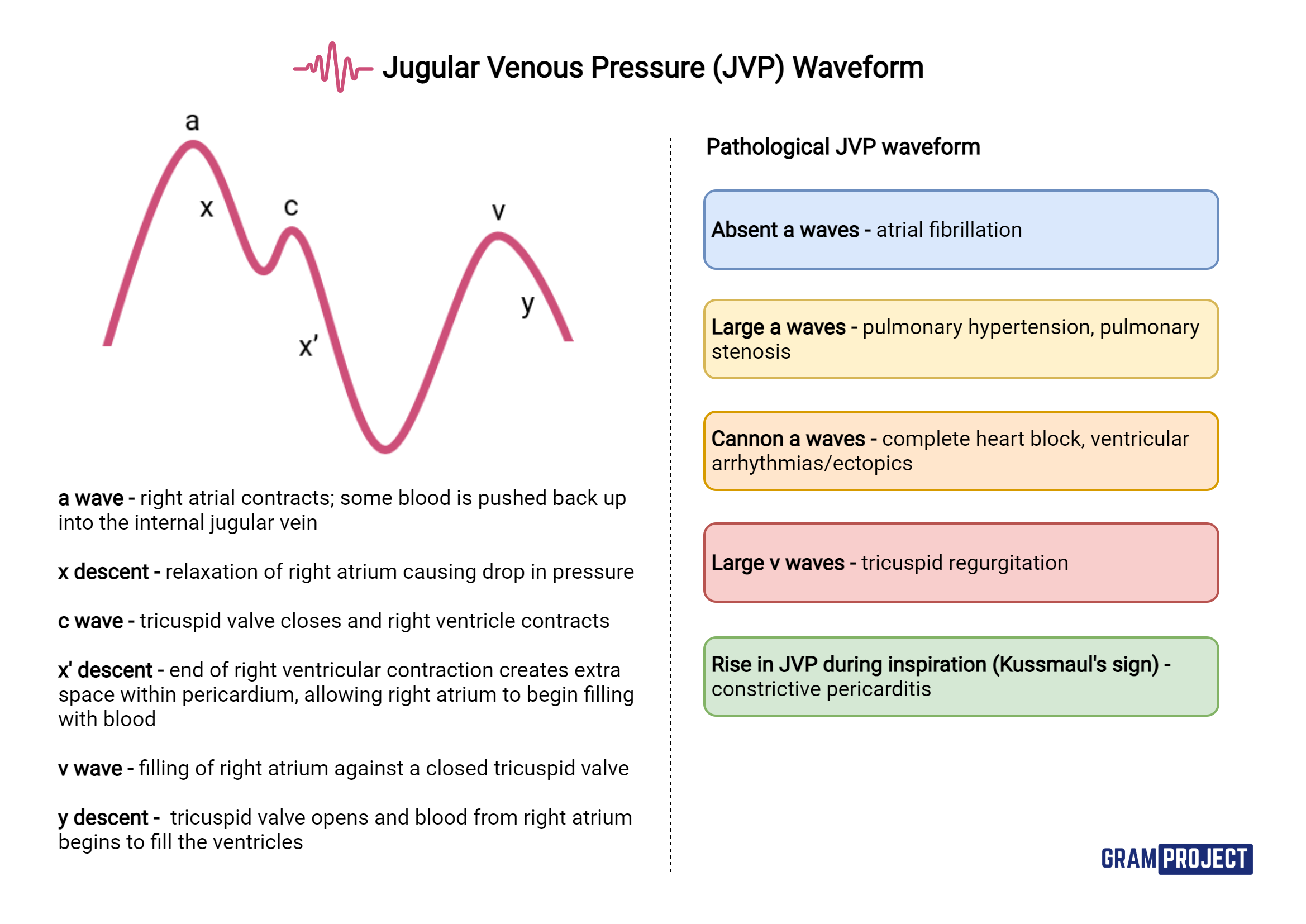 Basics of the JVP waveform and pathologies associated with it